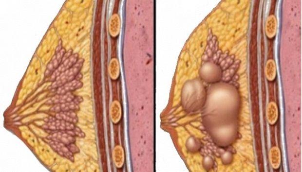 Ciste se javljaju na različitim dijelovima tijela posebno kod žena. Medicinske metode često su invazivne i bolne ali što je također problem, često se dešava [...]