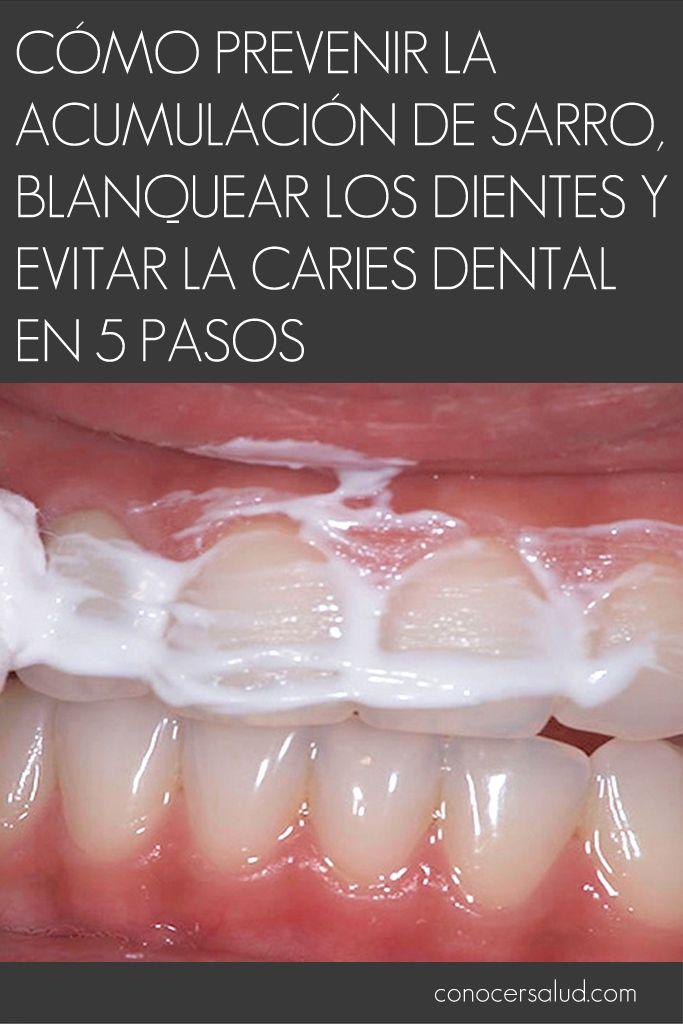 Cómo prevenir la acumulación de sarro blanquear los dientes y evitar la caries dental en 5 pasos #salud