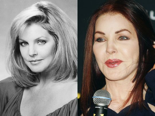 Celebrity Plastic Surgery Disasters? Priscilla Presley…before and after plastic surgery