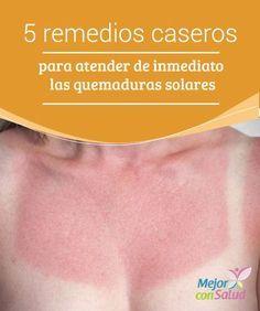 5 remedios caseros para atender de inmediato las quemaduras solares Las quemaduras solares son unas lesiones que se producen cuando los rayos ultravioletas logran atravesar la capa superior de la piel y generan daños en los tejidos superficiales,