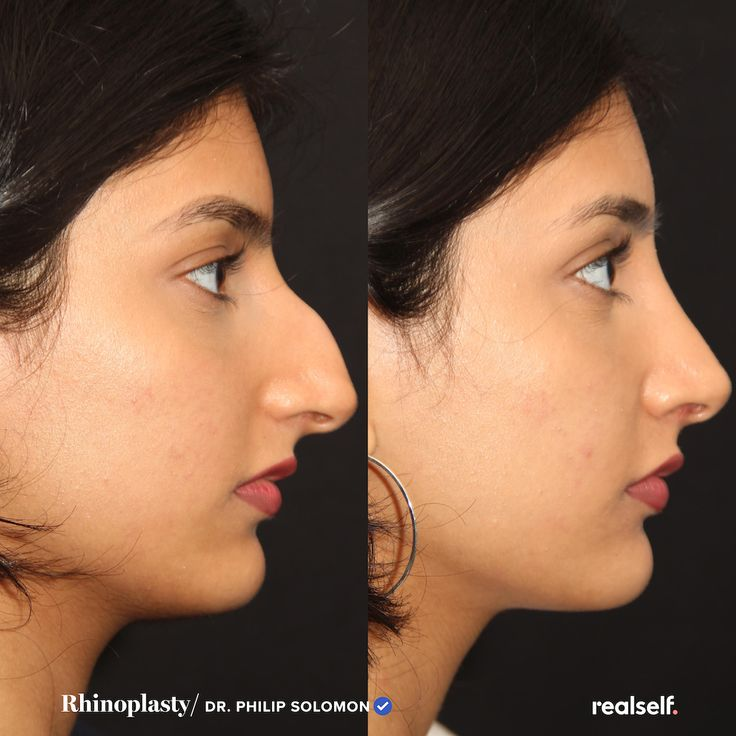 15 things you should know about nose jobs in 2020