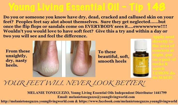 Lemon essential oil for dry or cracked heels and feet // www.aprilmasterson.com
