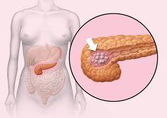 El cáncer de páncreas es una de las formas más agresivas de esta enfermedad. Algunos síntomas tempranos podrían ayudar a detectarlo a tiempo.