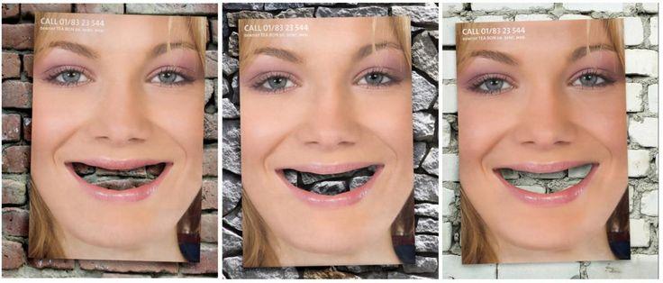 Креативная реклама в стоматологии - Юмор, релакс - Новости и статьи по стоматологии - Профессиональный стоматологический портал (сайт) «Клуб стоматологов»