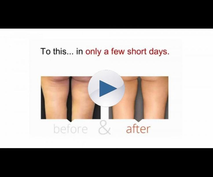 This is a Cellulite Factor review.