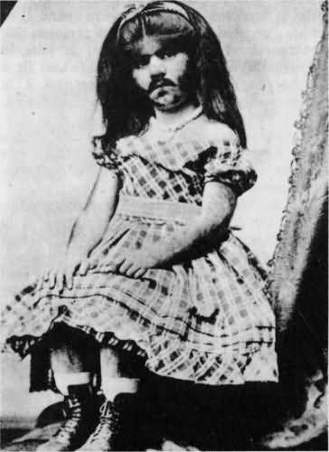 "Annie Jones (c. 1860 – 1902)  By the age of five, she had a mustache and sideburns and became well known as the ""Bearded Girl."""