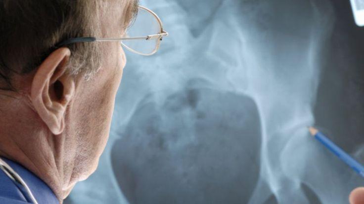 Hip implant patients sue manufacturer - BBC News