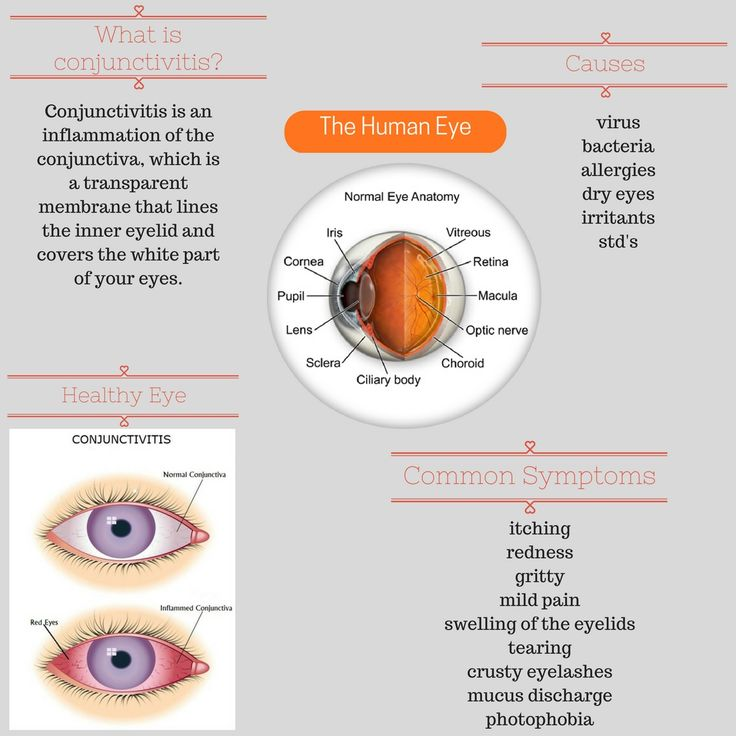 Allergic Conjunctivitis Vs Bacterial Pictures To Pin On: 17 Best Ideas About Conjunctivitis Symptoms On Pinterest
