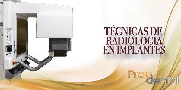 Técnicas de radiología en implantes
