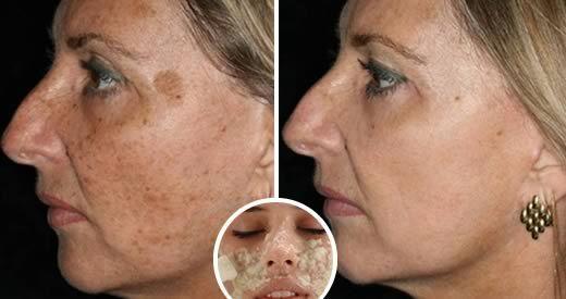 Le macchie della pelle possono comparire per molte ragioni, che vanno dall'esposizione al sole o [Leggi Tutto...]