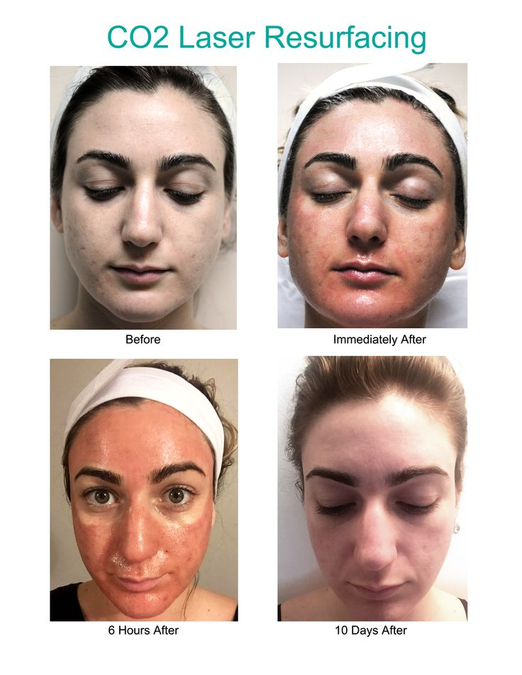 Wife facial resurfacing before and after