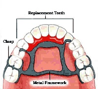Dental Implants Munster - http://www.ridgedentalcare.com/implant-options/ You now have a partial denture to replace missing teeth and restore your smile. You should be able to chew more easily and with greater comfort. The partial will also help preserve your remaining teeth. Wearing a partial can be easy. Just spend a little time getting used to it. And take good care of your partial to keep your mouth healthy and help make your partial last.
