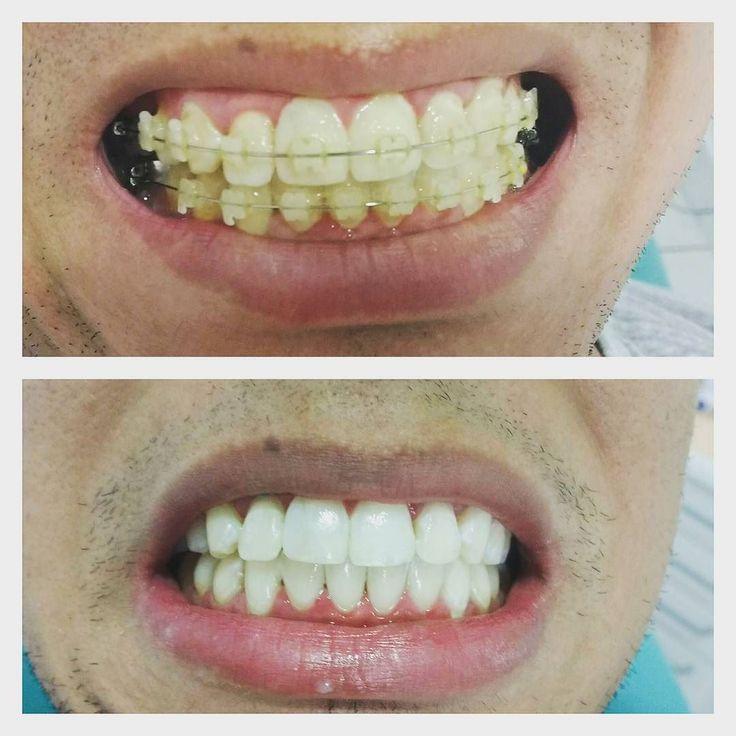 Bommm dia Começando a semana com esse resultado maravilhoso. Aplicação de Botox para correção do sorriso gengival foi feito também Clareamento e posteriormente será colocado as lentes de contato. #clareamento #botox #toxinabotulinica #dentista #zonanorte #lentesdecontato #drviotto #dratalitaorto #sp #saopaulo #011 #bioritmo #dentistry #ortodontia #orto #autoligado #aparelho #invisalign #estheticaligner #aparelhoinvisivel #orthodontic Agende sua consulta 11 95913-8535 by dra_talita Our…