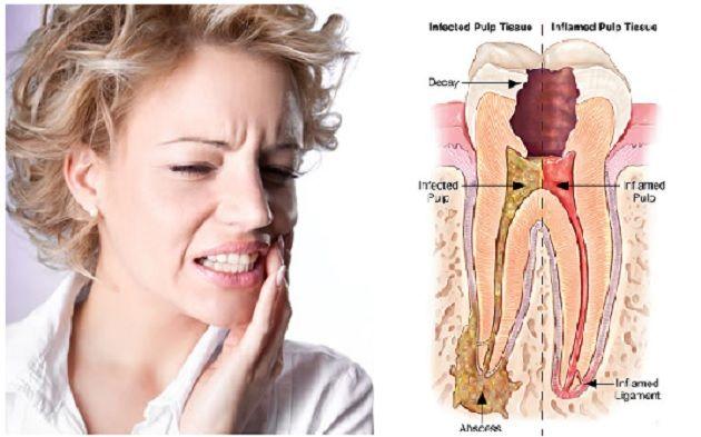 Existen ingredientes naturales que eliminan el dolor de muelamás rápido que la mayoría de las fármacos químicas.\r\n[ad]\r\nEl aceite de clavo dulce (o clavo de olor) actúa como un calmante para el dolor de muelas, incluso es más rápidoy más eficaz que estos fármacos.\r\n\r\nSin embargo, el aceite de clavo de olor no tiene efectos secundarios y quealiviael diente doloroso de inmediato de, sin causar efectos indeseados.\r\n[ad]\r\nCuando te aplicas el aceite de clavo dulce en tu diente…