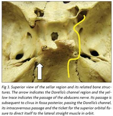 Abducens nerve entrapment in Dorello's canal at the skull base - Genetic Disorders Blog Articles