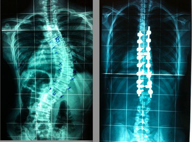 Radiografias Pré e Pós operatórias de Cirurgia para Escoliose