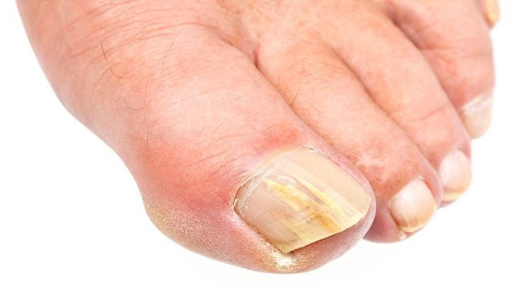 Sit on a chair or on the floor, holding the toe clippers in one hand, grabbing/understanding your foot with the other.