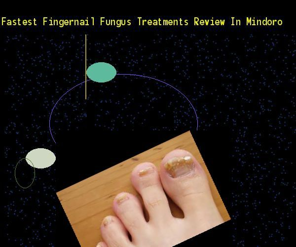 Fastest fingernail fungus treatments review in mindoro  Nail Fungus Remedy. You