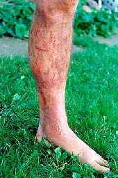 Ouch! A run-in with wild parsnip can cause blisters and discoloration of the skin.   I got this on my foot this weekend.  It really hurts.   Be careful.   I had no idea it existed!