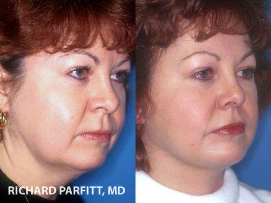 facelift-surgery-WI-patient-97