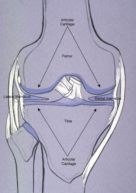 Torn Meniscus - The menisci are pads between the femur and the tibia