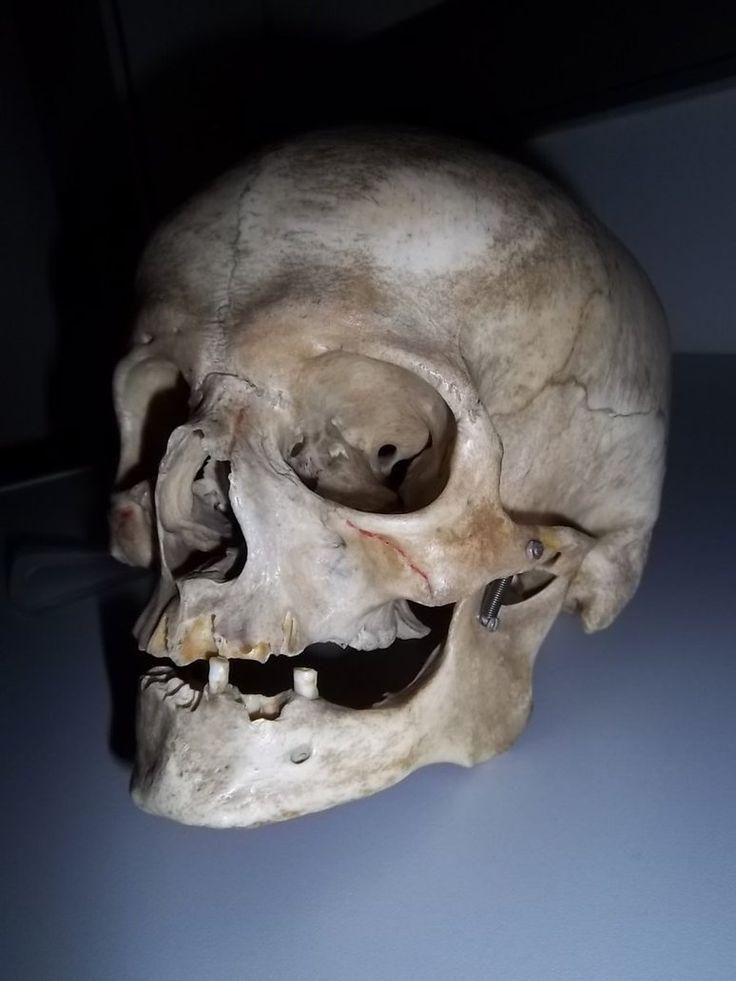 real  human skull headshot by RatteMacchiato