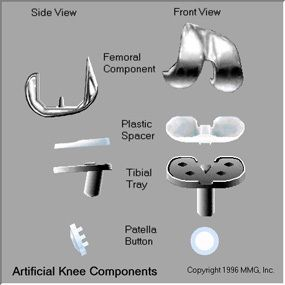 11 Best Total Knee Replacement Images On Pinterest Knee