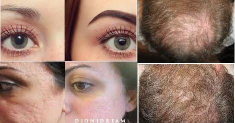 L'olio di Ricino. Il miglior prodotto naturale per i capelli, ciglia, sopracciglia, unghie e pelle!