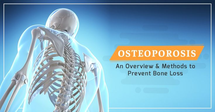 Osteoporosis : an Overview and Methods to Prevent Bone Loss