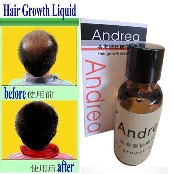 アンドレア育毛アンチ抜け毛液体20ミリリットル密な毛速いサンバースト髪の成長は、無効な払い戻し脱毛症