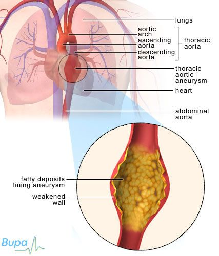 95 best images about aneurysms on pinterest | abdominal aorta, Human Body