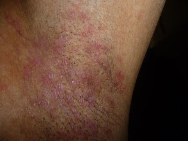 Las bayas del mundillo a la psoriasis