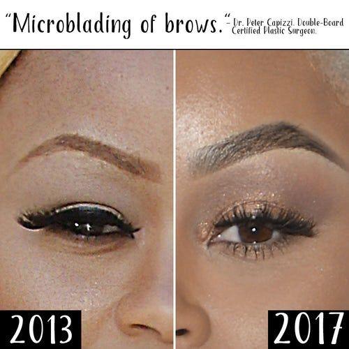 Blac Chyna Plastic Surgery Eyebrows 1