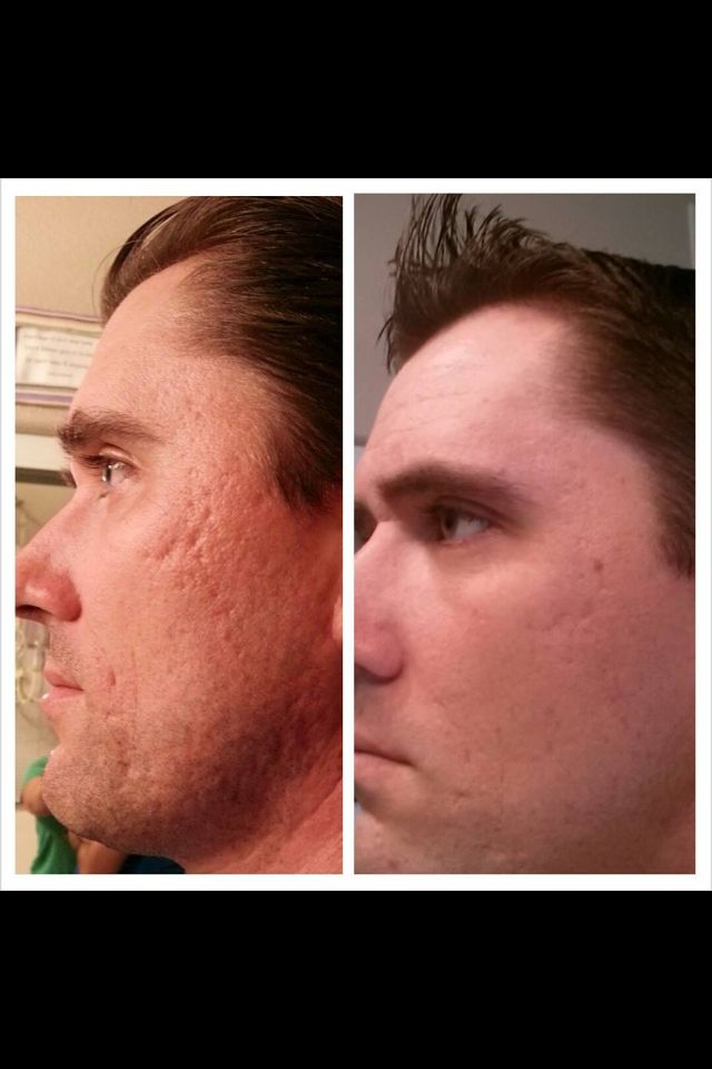 Before and after picture! Customer using Nerium - contact me for details http://www.trishagleich.nerium.com