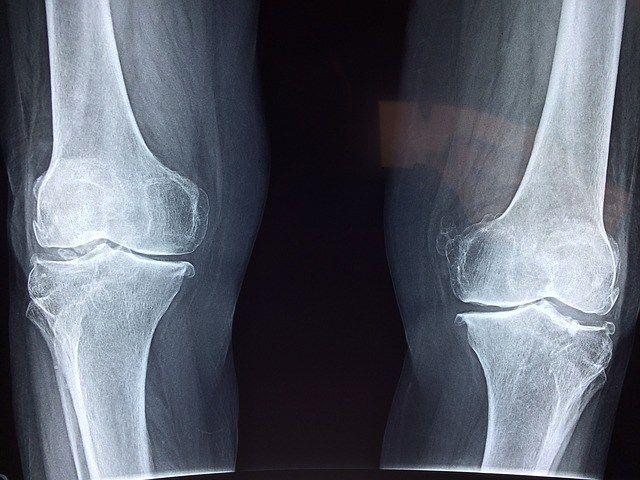 Legemidler for artrose?