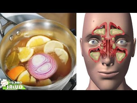 """La Bomba"" Un Remedio Natural Para Aliviar La Sinusitis Y Otros Problemas Respiratorios - YouTube"