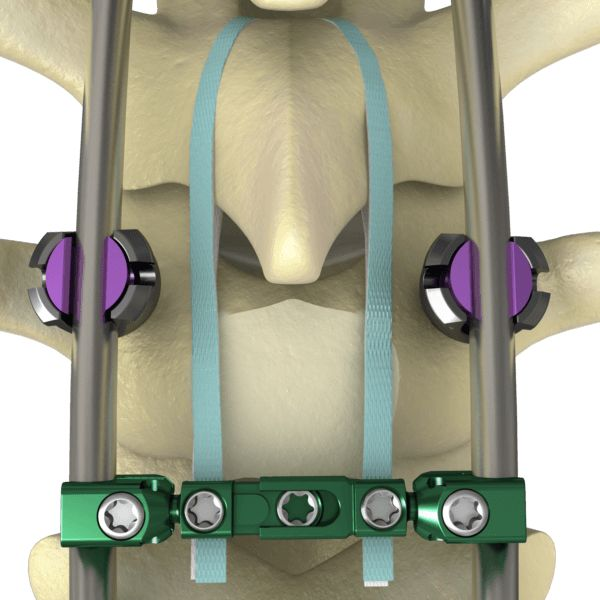 K2M Receives FDA Clearance & CE Mark for NILE® Proximal Fixation Spinal System - http://www.orthospinenews.com/k2m-receives-fda-clearance-ce-mark-for-nile-proximal-fixation-spinal-system/