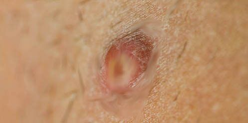 Prev post1 of 3Next A boil is a kind of skin infection that happens due to an acute staphylococcal infection of hair follicle. It is also known as skin abscess. Generally a boil occurs on the inner thigh but it can also occur on face, armpit, back of the neck, throat, groin and buttocks. Some