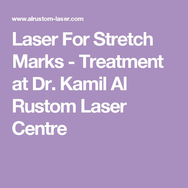 Laser For Stretch Marks - Treatment at Dr. Kamil Al Rustom Laser Centre