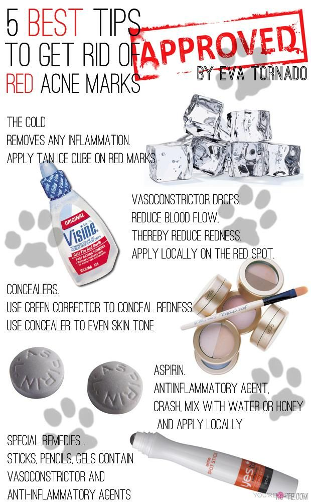 Makeup Hack | Here are some great tips to get rid of red acne marks. #DIYReady DIYReady.com