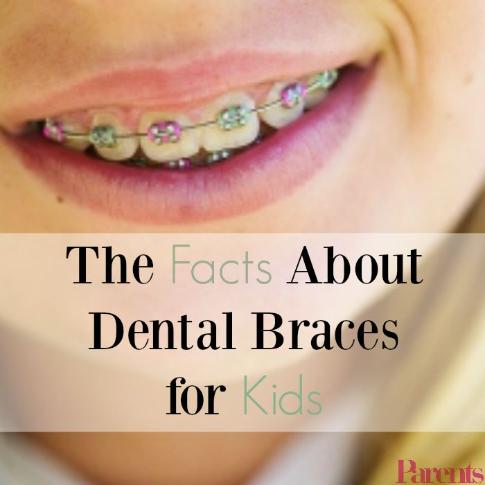 Everything you need to know about getting your kid dental braces and visiting the orthodontist.