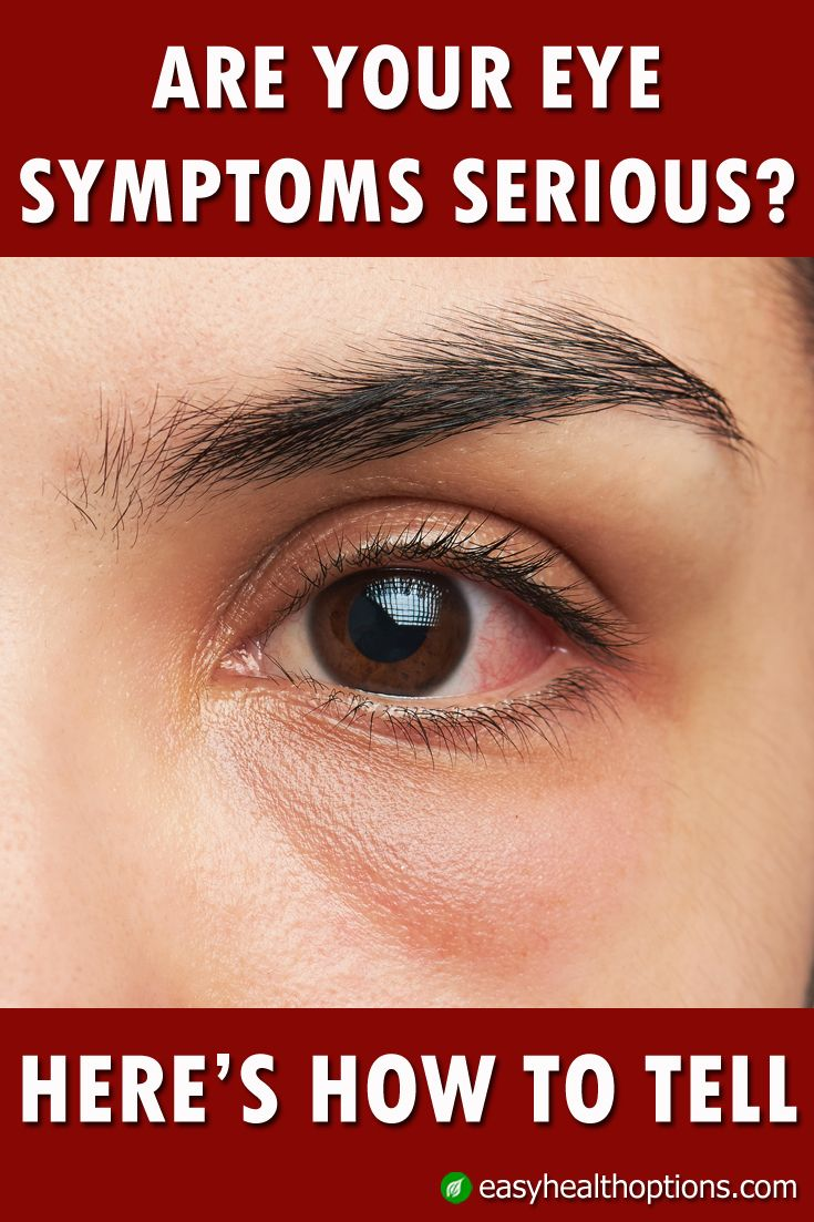 Fix red eye in google photos