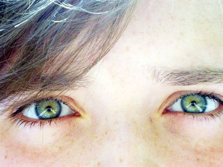 24 best images about Central Heterochromia on Pinterest ...