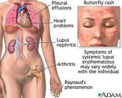 Beat systemic lupus naturally