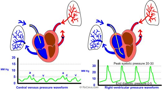 pulmonary artery catheter | Pulmonary wedge pressure; Pulmonary Artery Wedge Pressure; Pulmonary ...To assess gas exchange at the tissues you would sample blood from the PULMONARY ARTERY b/c you need to wait until after all the blood from all the capillary beds mixes together which is only complete in the pulmonary artery.
