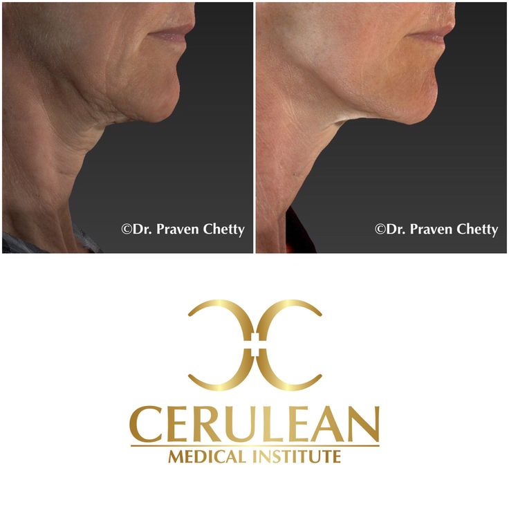 Non-surgical Neck Lift with zero downtime by Dr. Praven Chetty at Cerulean Medical Institute in Kelowna, BC. #Wellness #Beautiful #Youthful #AntiAging #NonSurgical #NoDowntime #NeckLift #Cosmetic #Dermatology #Facial #Sculpting #Contouring #CeruleanMedicalInstitute #DrPravenChetty #Kelowna #Okanagan #ylw #BritishColumbia