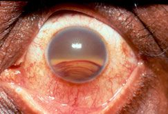 A hyphema is a collection of blood inside the front part of the eye (called the anterior chamber, between the cornea and the iris). The blood may cover part or all of the iris (the colored part of the eye) and the pupil, and may partly or totally block vision in that eye. Hyphema is usually caused by trauma to the eye, though other conditions may cause hyphema as well.
