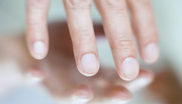 Ripples, bumps or even splits in your fingernails can be warning signs that something is wrong with your overall health.