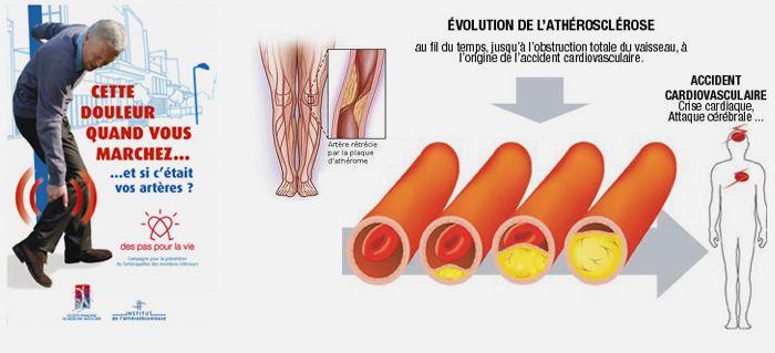 l'artère stenosé pied - Recherche Google
