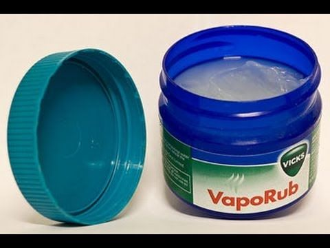 Vicks Vapor Rub for Cystic Acne. (min. 2:28 of video) I tried it and it does really help to heal cystic acne faster and without scarring. Give it two nights before you decide. Don't touch it too much after you put it on. I wash it off with apple cider vinegar on a cotton pad instead of soap.